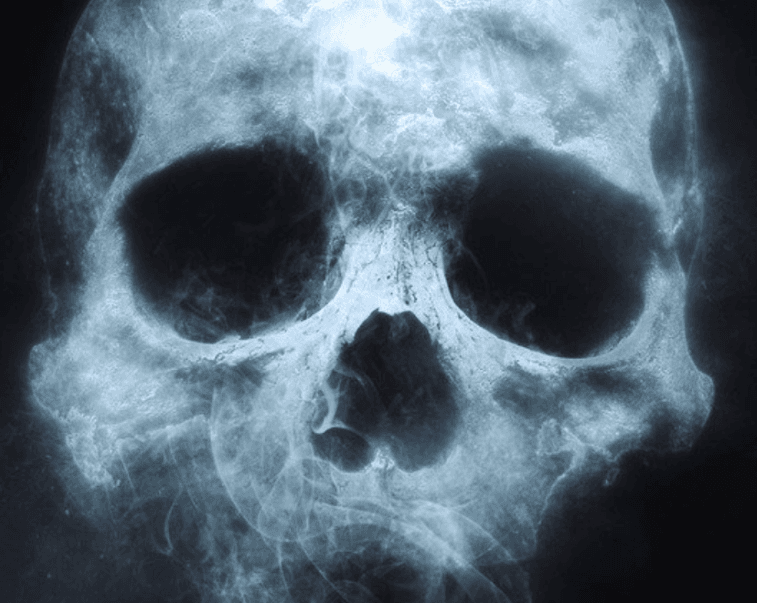 Xray of a skull promoting the Haunted House fundraiser at the McPherson Museum